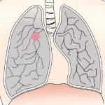 がんの肺転移がわかった時に知っておくべきことや余命は?