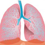 ベージニオとイブランスの間質性肺疾患と対策